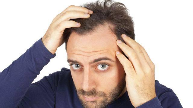 alopecie-homme-tunisie
