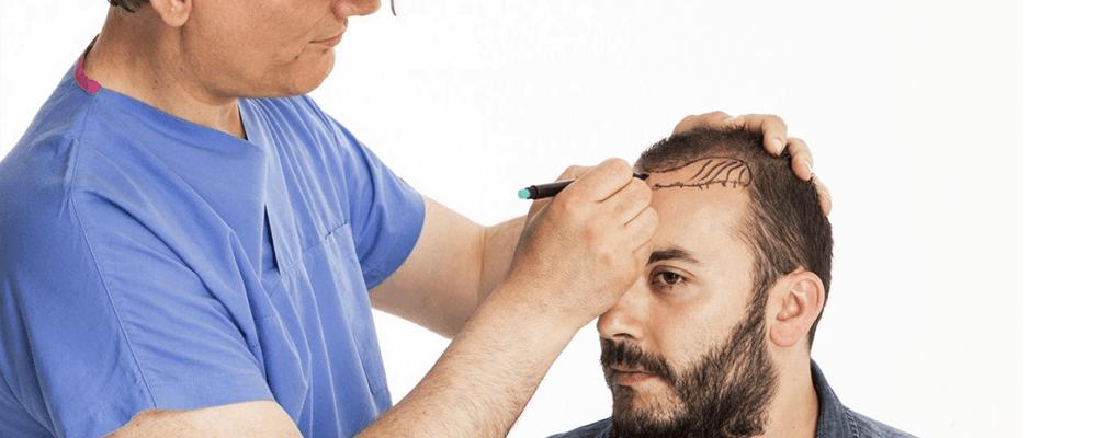 chirurgien-greffe-cheveux-tunisie