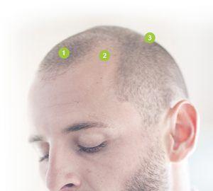 alopecie-masculine-tunisie