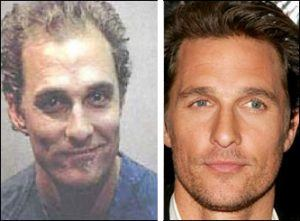 greffe-cheveux-Matthew-McConaughey