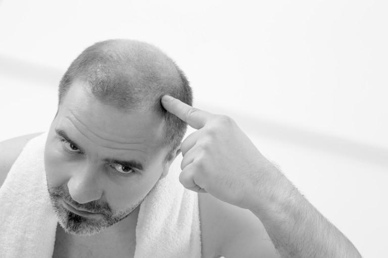 chirurgie chute cheveux tunisie