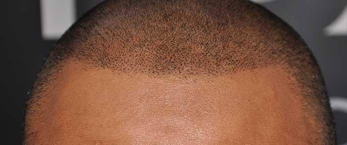 greffe cheveux ligne frontal tunisie